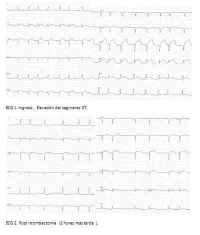 ECG-electrocardiograma