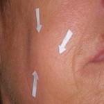 Dilatación del conducto de Stenon causando inflamación facial. Presentación de un caso y revisión de la literatura