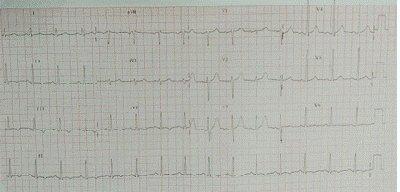 ECG-con-T-negativa-cara-inferior
