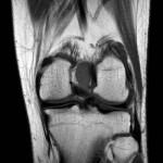 Tumor de células gigantes intraarticular de rodilla diagnosticado tras gonalgia postraumática. A propósito de un caso