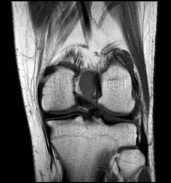 RNM-rodilla-corte-coronal