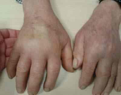 Sinovitis-seronegativa-simetrica-remitente-anciano-edema