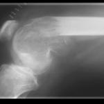 Evidencias diagnósticas de la Artritis Reumatoidea Juvenil