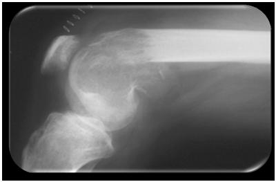 artritis-reumatoidea-juvenil-rx-femur