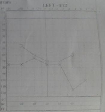 audiometria-perdida-neurosensorial