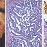 Cáncer de endometrio y sus evidencias diagnósticas