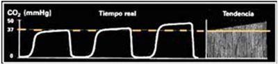 capnograma-elevacion-EtCO2