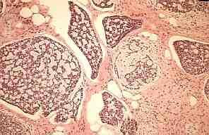 carcinoma-Bartholino