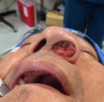 carcinoma-sebaceo-del-vestibulo-nasal