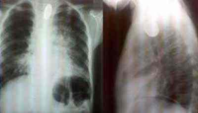 cuerpo-extraño-radioopaco-esofago