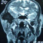 Deformidad facial progresiva