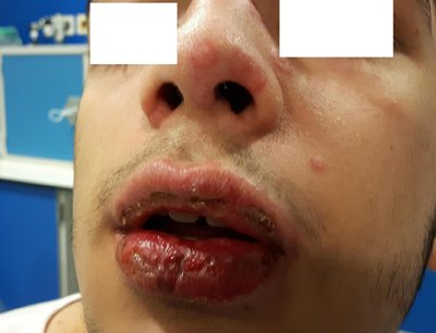 eritema-multiforme-afectacion-labios