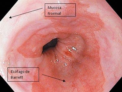esófago-de-Barrett-EB-mucosa-columnar