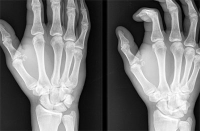 fractura-falange-proximal