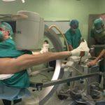 Técnica quirúrgica para fracturas pertrocantéreas de fémur. Clavo intramedular