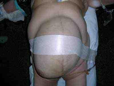 hematoma-gigante-abdominal