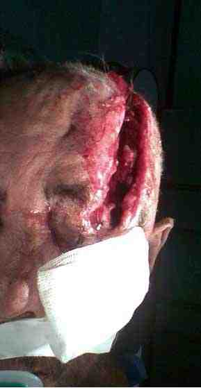 herida-traumatismo-craneoencefalico
