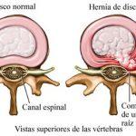 Cuidados de Enfermería en postoperatorio de laminotomía y discectomía l5-s1. A propósito de un caso