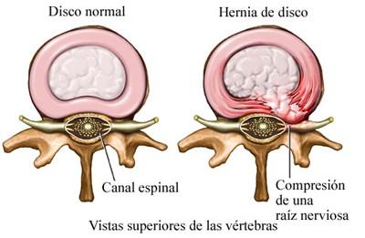 Cuidados de enfermer a en postoperatorio de laminotom a y for Silla oficina hernia discal