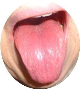 lengua-roja-depapilada