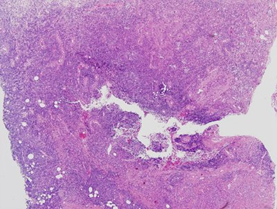 leucemia-linfocitica-cronica