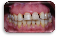 migracion-dental