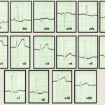 Miocardiopatía hipertrófica, debut con insuficiencia cardíaca. Presentación de un caso clínico