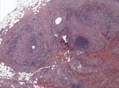 paniculitis-neutrofílica-lobulillar-y-septal