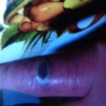 Picadura insecto desconocido. Caso práctico