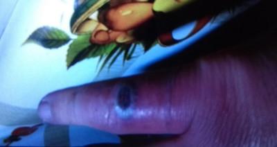 FOTO 1.-picadura-insecto