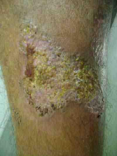 pioderma-gangrenoso