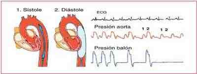 presiones-balon-contrapulsacion