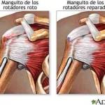Rotura del manguito de los rotadores. Presentación caso clínico