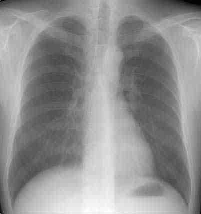 rx-torax-enfermedad-venooclusiva