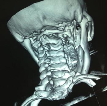sindrome-de-eagle-apofisis-estiloides