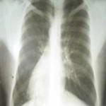 Presentación de un caso: Artritis Reumatoidea y Situs Inversus