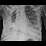 Tuberculosis intestinal. Revisión de la literatura y Presentación de un caso