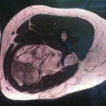 Tumoraciones de región posterior del muslo en paciente joven