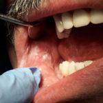 Seguimiento de las lesiones premalignas de la cavidad oral. Caso clínico
