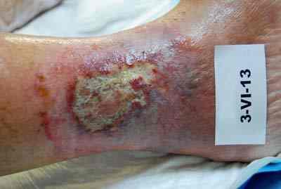 ulcera-varicosa-exudativa