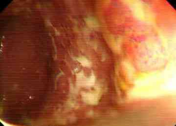videocolonoscopia-colitis-ulcerosa