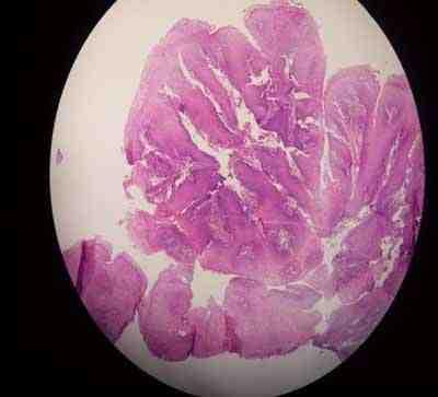 anatomia-patologica-esofago-acantosis