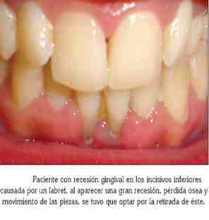 piercing-gingivitis