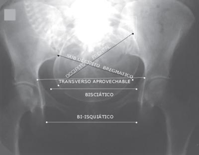 desproporcion-pelvico-cefalica