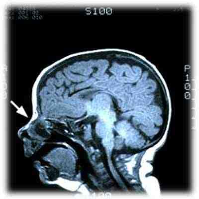encefalocele-basal