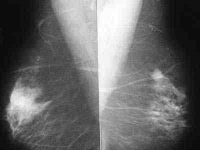 mamografia-convencional-masa-densidad