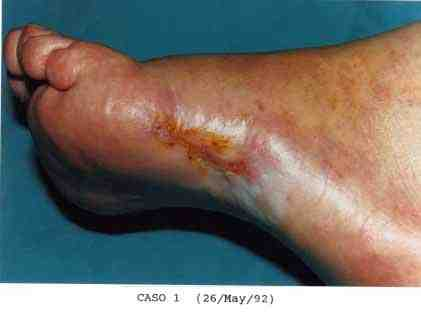 18-ulceras-cronicas-torpidas