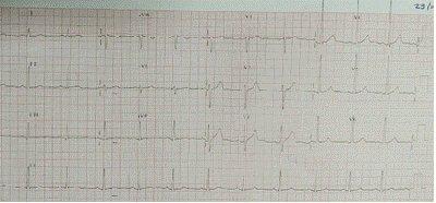 ECG-con-T-normalizada