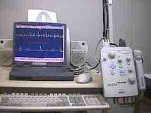 EMG-electromiografia-potencial-musculo