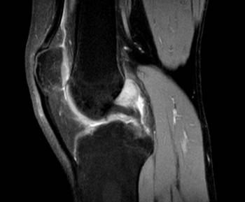 RNM-rodilla-corte-sagital